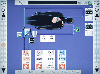 Touch screen serves as both a safety monitor and as the central interface for the system components.